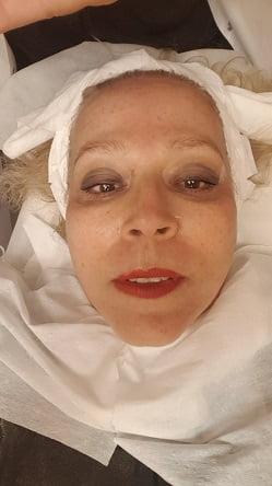 אלפאמדיקס - פנים לאחר טיפול - ללא איפור.