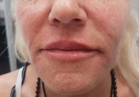 שפתיים לאחר טיפול