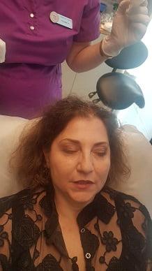 היירסטטיקס - יעל לפני הזרקת השיער